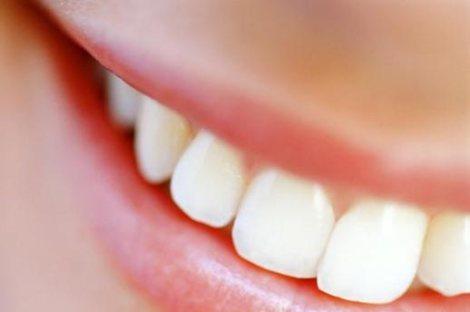 sorriso (1)